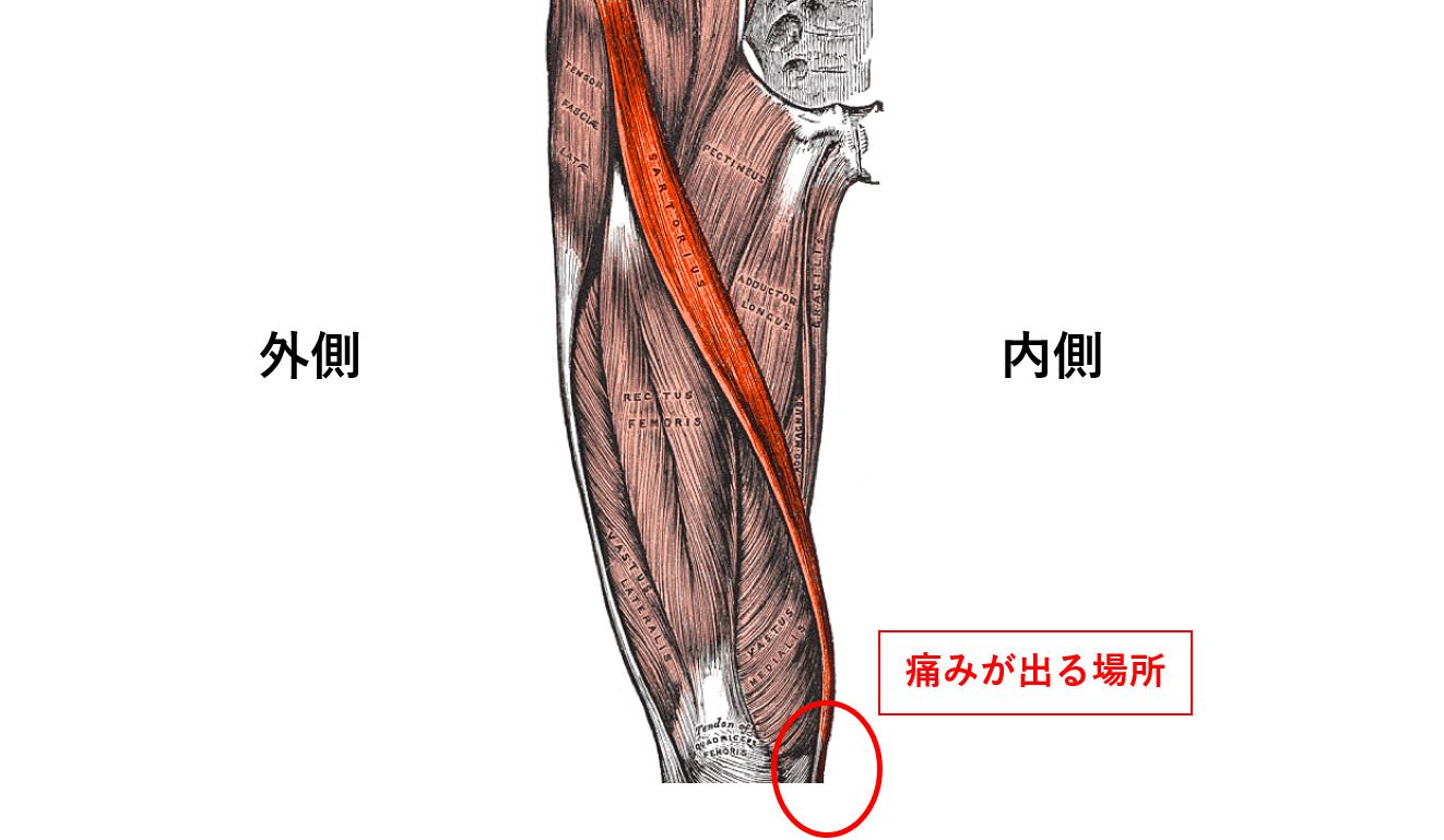 膝痛の原因箇所②:鵞足