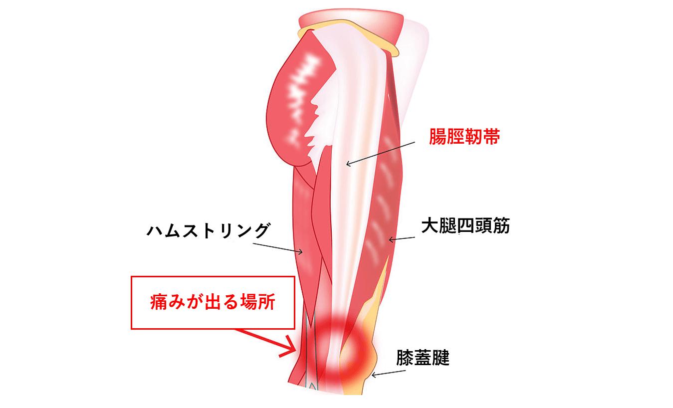 膝痛の原因箇所①:腸脛靭帯